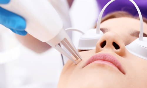 Laser Therapies